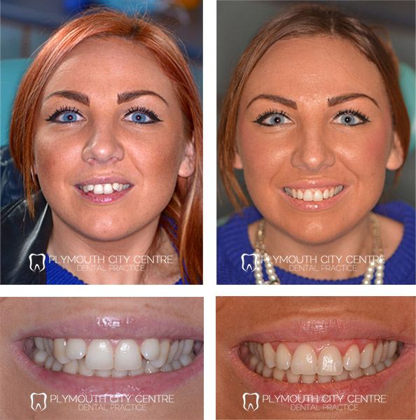 Six Month Smiles Plymouth Fast Invisible Braces